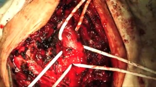 Tracheoesophageal fistula resection and repair.
