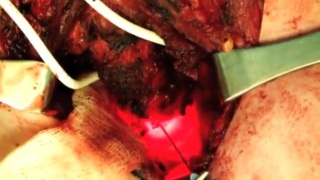 Segmental resection of cervical trachea (2013)