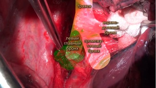 Open right upper lobectomy with lymph node dissection.